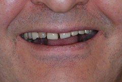 Upper Jaw Implant Bridge provided by Bethesda dentist Dr. David Mazza, DDS