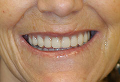Dentures provided by Bethesda dentist Dr. David Mazza, DDS
