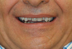 Bonding and Implant Supported Denture provided by Bethesda dentist Dr. David Mazza, DDS