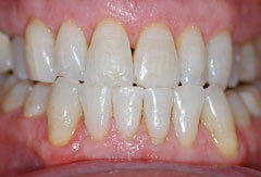 Gum treatment provided by Bethesda dentist Dr. David Mazza, DDS