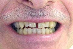 Invisalign and Veneers provided by Bethesda dentist Dr. David Mazza, DDS