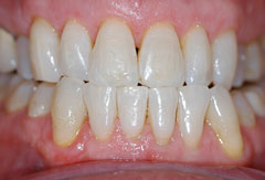 Invisalign provided by Bethesda dentist Dr. David Mazza, DDS