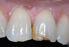 Cosmetic bonding provided by Bethesda dentist Dr. David Mazza, DDS