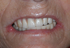 Full Mouth Implant Bridge provided by Bethesda dentist Dr. David Mazza, DDS