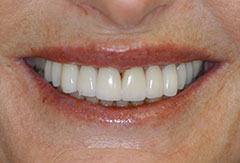 Crowns and Bridges provided by Bethesda dentist Dr. David Mazza, DDS