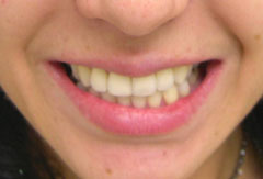Teeth Whitening provided by Bethesda dentist Dr. David Mazza, DDS