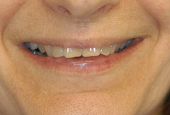 Porcelain Laminate Veneers provided by Bethesda dentist Dr. David Mazza, DDS